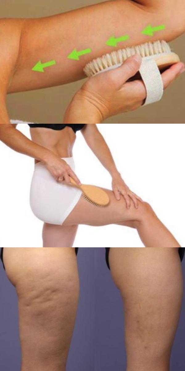 Этот простой метод активизирует работу лимфатической системы, улучшит кровообращение, избавит от целлюлита и не только!