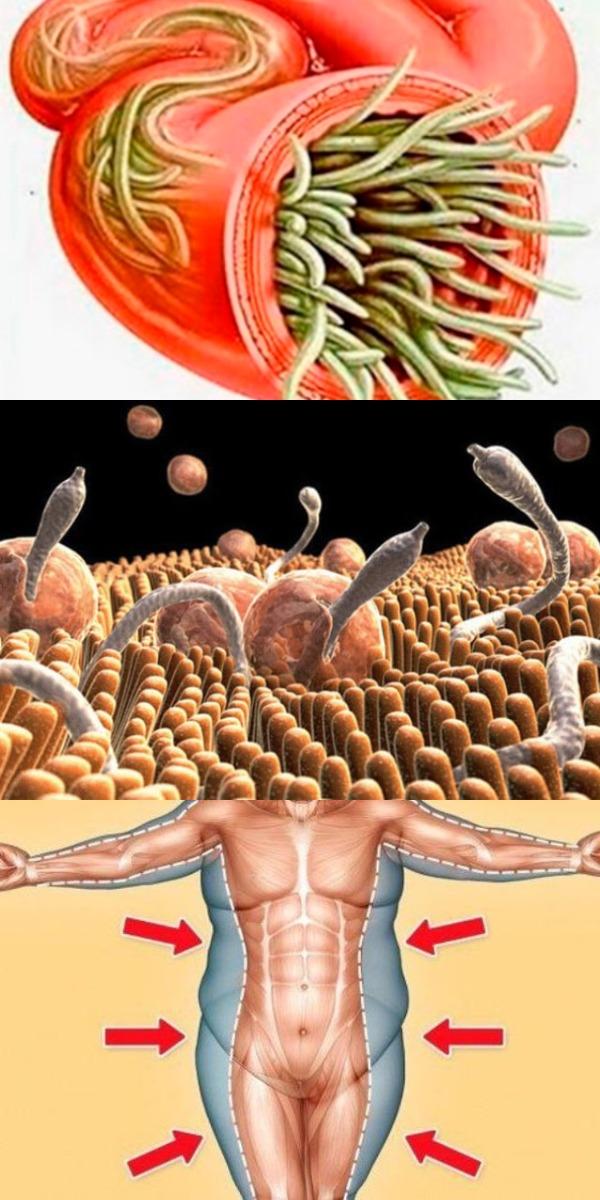 Избавься от жировых отложений и паразитов без особых усилий! Просто используй эти 2 ингредиента!