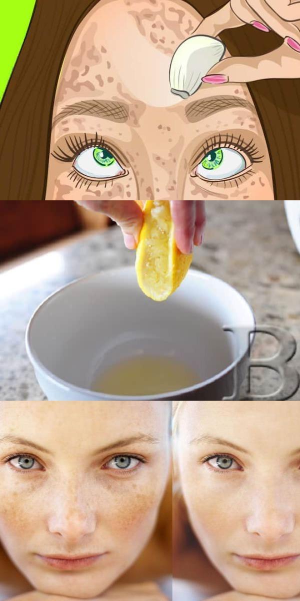 Лучшее средство для идеальной кожи. Стирает пигментный пятна словно ластик