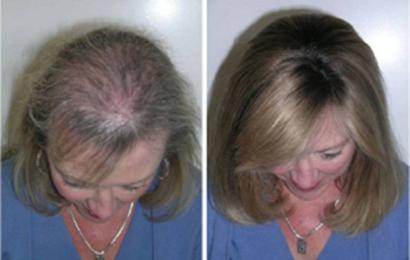 Быстрый рост волос благодаря этому трюку! Через месяц вы не поверите своим глазам…