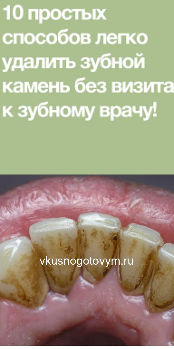 10 простых способов легко удалить зубной камень без визита к зубному врачу!