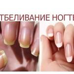 Отбеливание ногтей фото