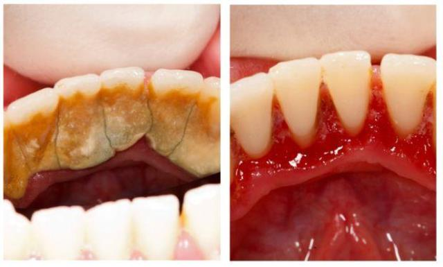 Отличный способ избавиться от зубного камня самому и дома