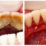 Отличный способ избавиться от зубного камня самому и дома!
