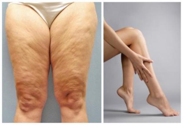 Как подсушить ноги. Совет дня! Как просушить ноги всего за 1 неделю!