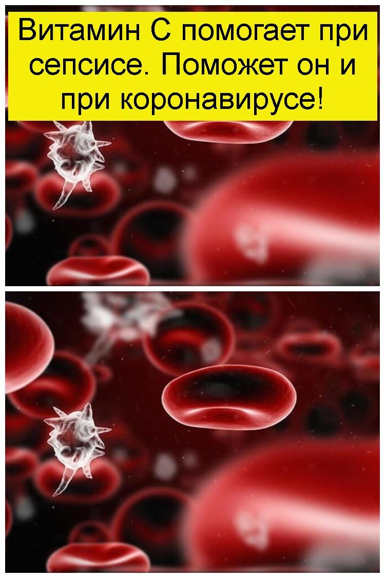 Витамин С помогает при сепсисе. Поможет он и при коронавирусе 4