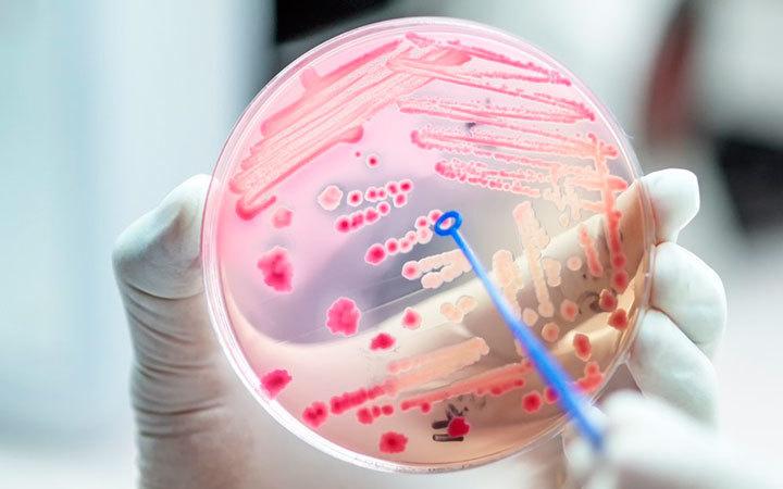 Витамин С помогает при сепсисе. Поможет он и при коронавирусе 7