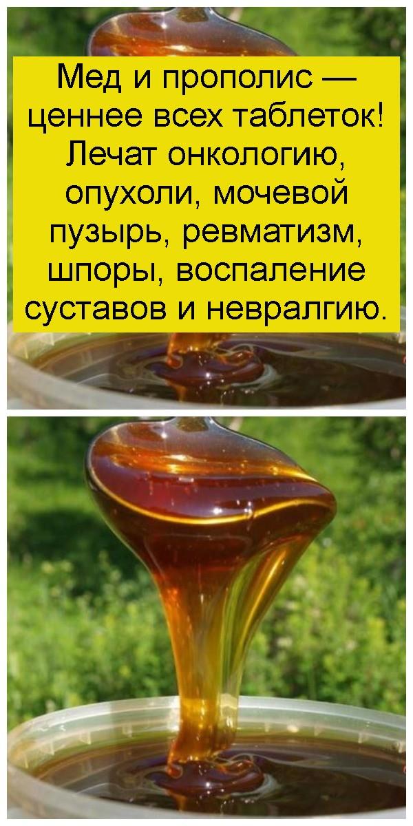 Мед и прополис — ценнее всех таблеток! Лечат онкологию, опухоли, мочевой пузырь, ревматизм, шпоры, воспаление суставов и невралгию 4